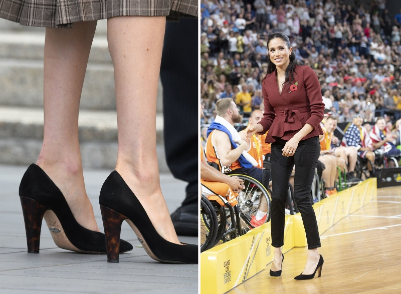 Меган Маркл шишки на ногах операция